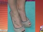 Britney Spears' Skin Sparks Psoriasis Concerns